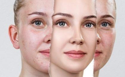 goed slapen gezonde huid