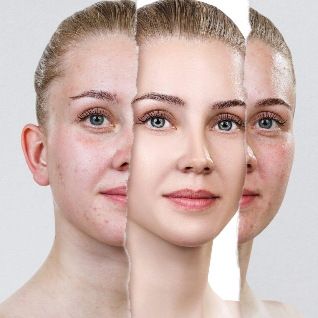 goed voor je huid