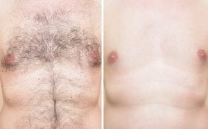 Chest hair (before and after)