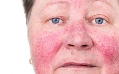 rosacea symptomen