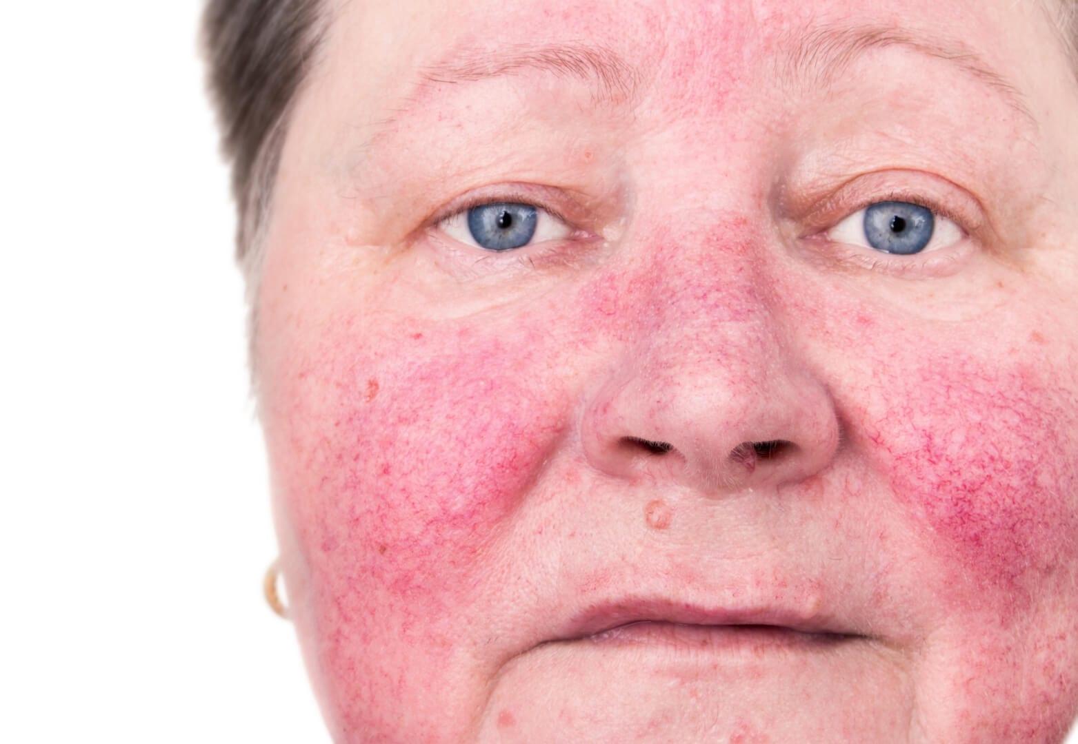 Symptomen rosacea met handige tips
