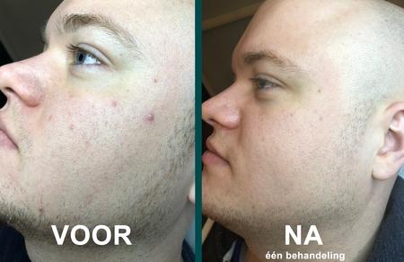 voor en na chemische peeling