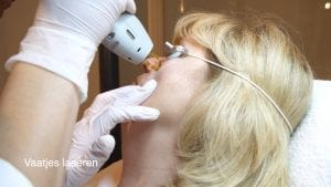 Vessel laser treatment