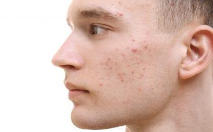 Man met acne