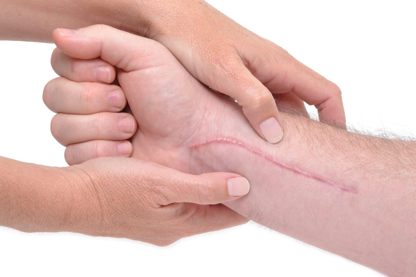 Keloid litteken (info plus beste oplossing)
