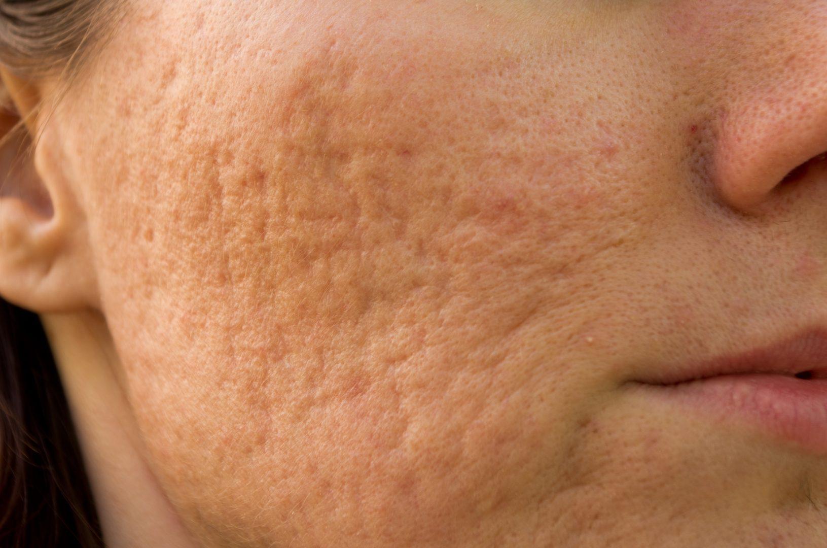 acne littekens