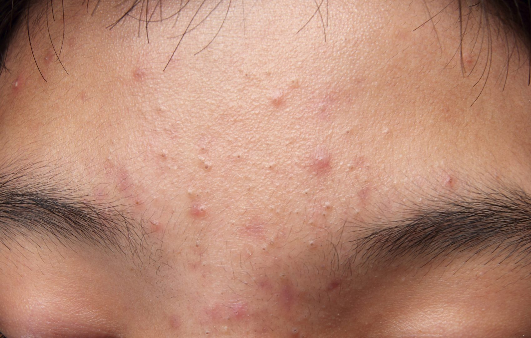 Is acne besmettelijk?